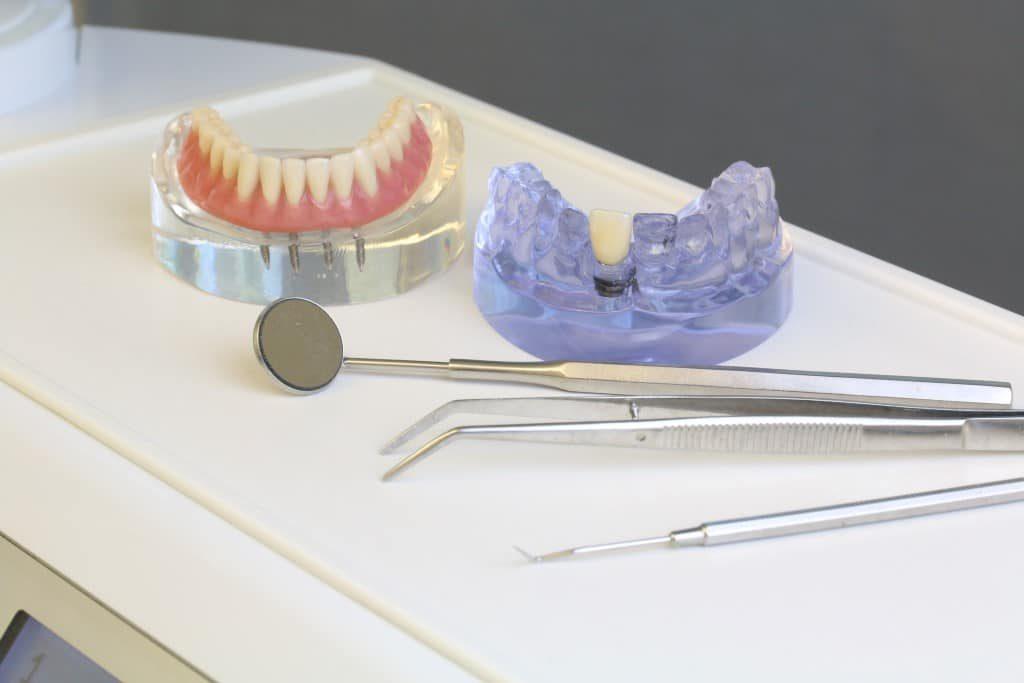Implantagetragener Zahnersatz