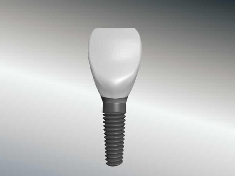 Implantat mit Krone - Aufbau eines Implantats