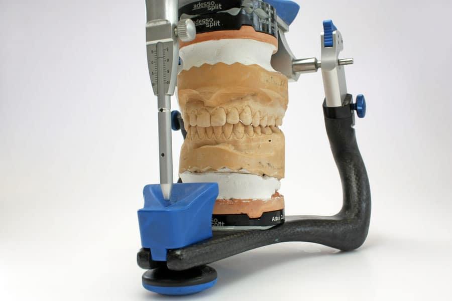 Funktionsanalyse in der Zahnmedizin in der Haranni Clinic in Herne - Abdruck eines menschlichen Gebisses