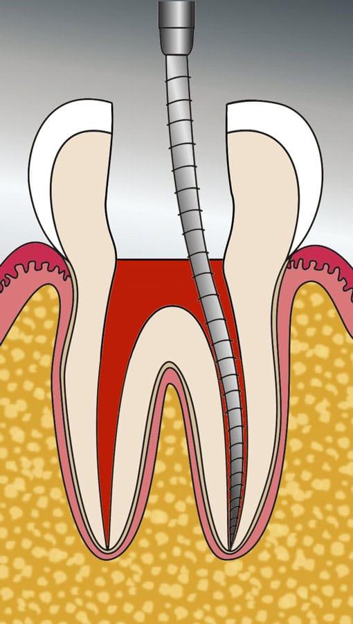 Wurzelbehandlung beim Zahnarzt in Herne - Reinigung eines Zahnwurzelkanals