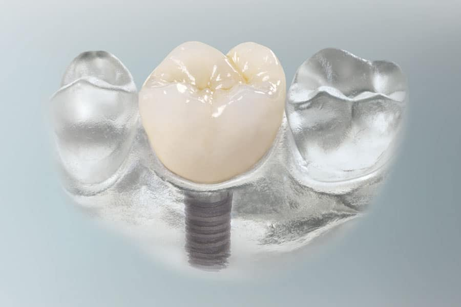 Beispiel eines Zahnimplantats beim Zahnarzt in Herne - Haranni Clinic